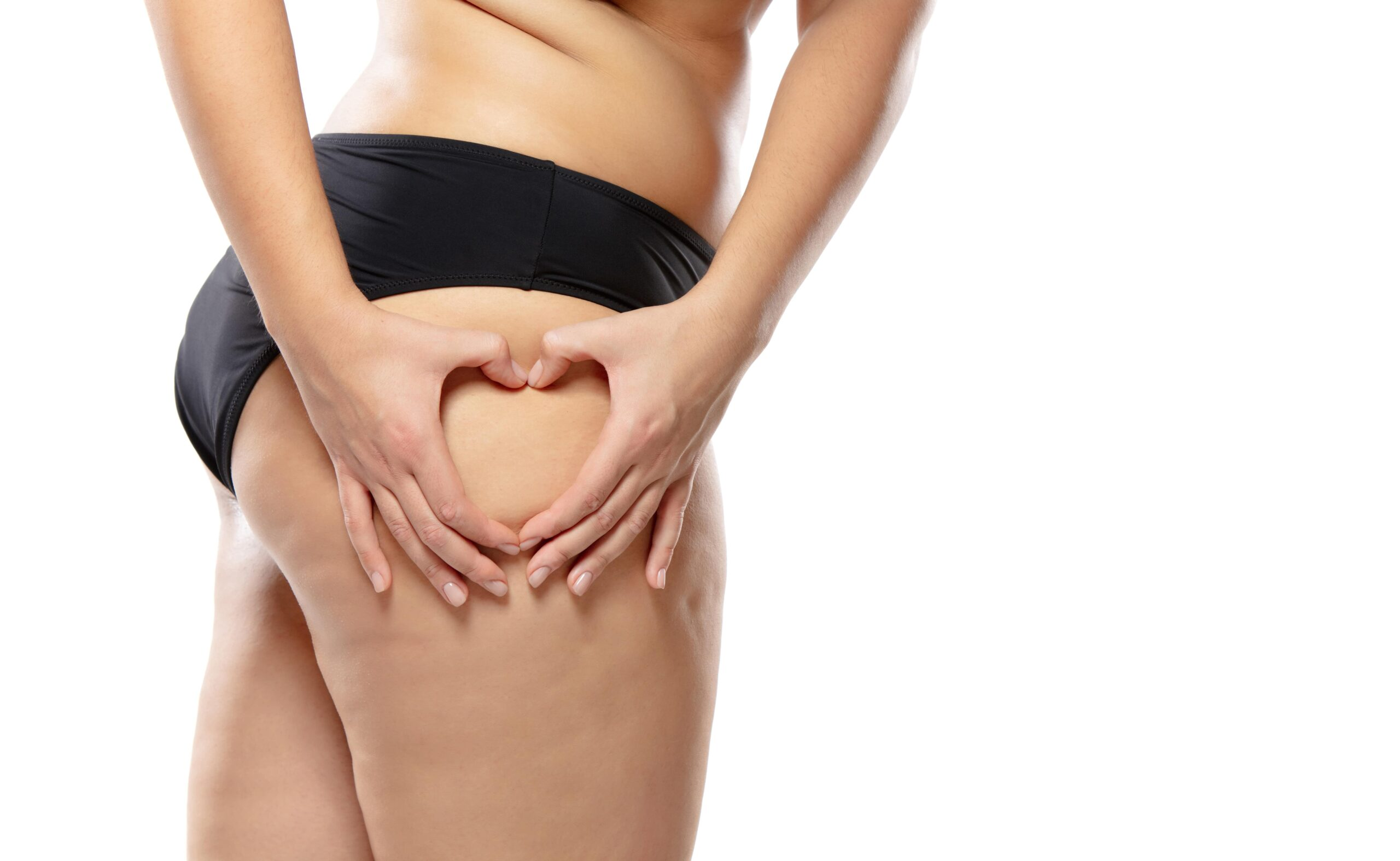 What foods cause cellulite on legs?